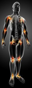 joint-pain-arthritis-picture-copy-111x300