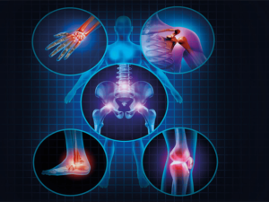 stem cell therapy for knee